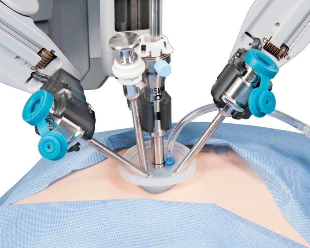 cirurgia robótica abdomen