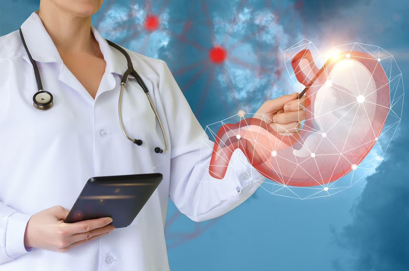 Como fica o estômago depois da Cirurgia Bariátrica?