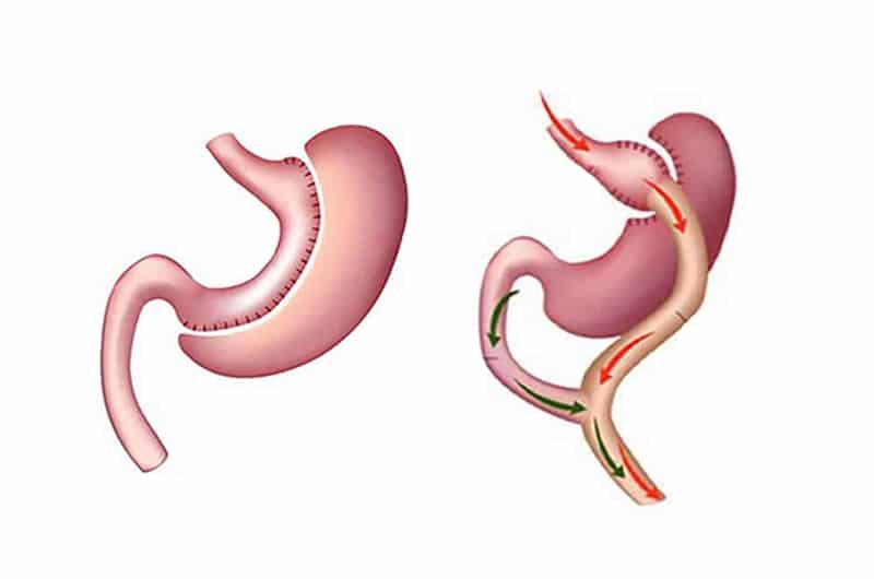 Read more about the article Cirurgia Bariátrica é segura?