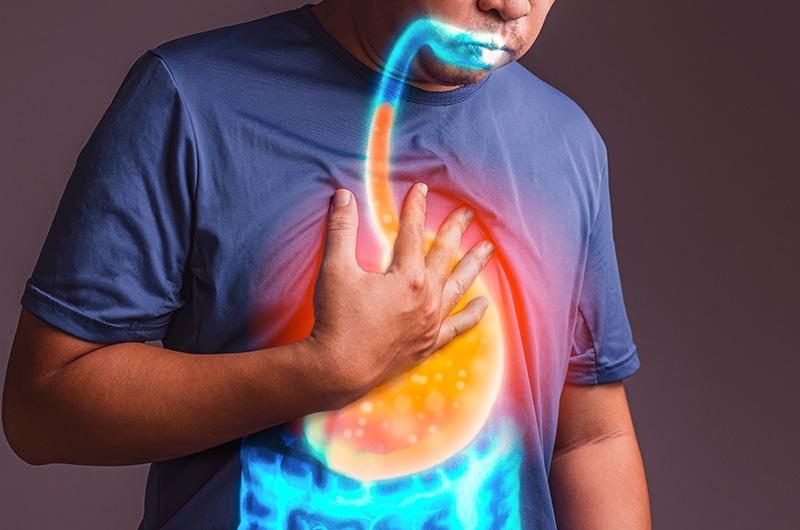 Read more about the article Transformando Sleeve em Bypass Gastrico para melhora do Refluxo