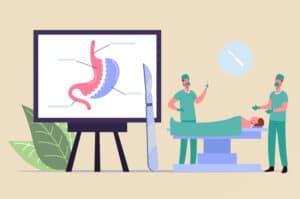 Mitos sobre Cirurgia Bariátrica